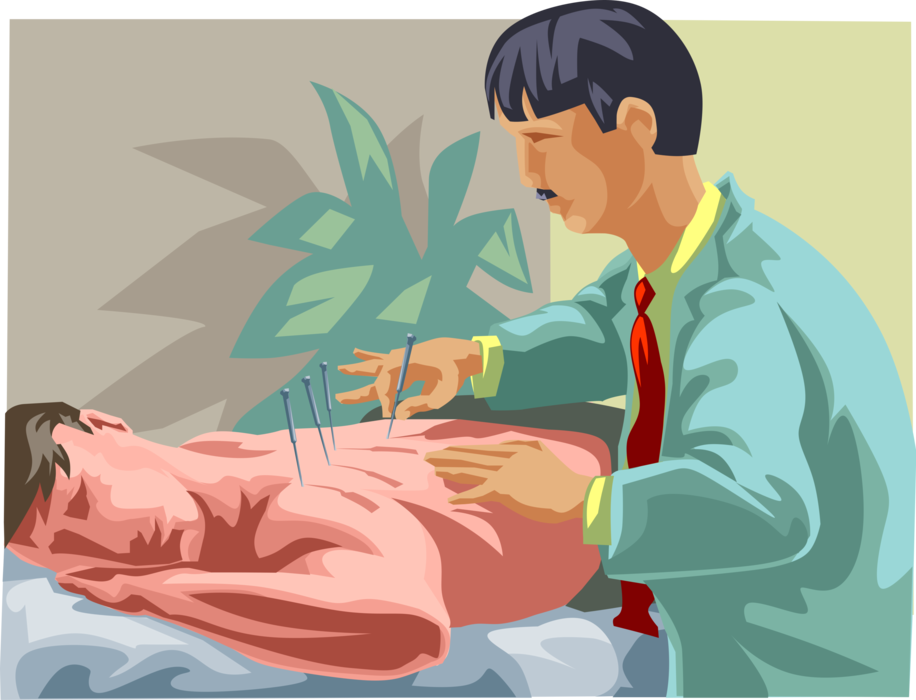 Vector Illustration of Alternative Medicine Pseudoscience Traditional Chinese Acupuncture Treatment